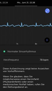 EKG-Messung Withings ScanWatch